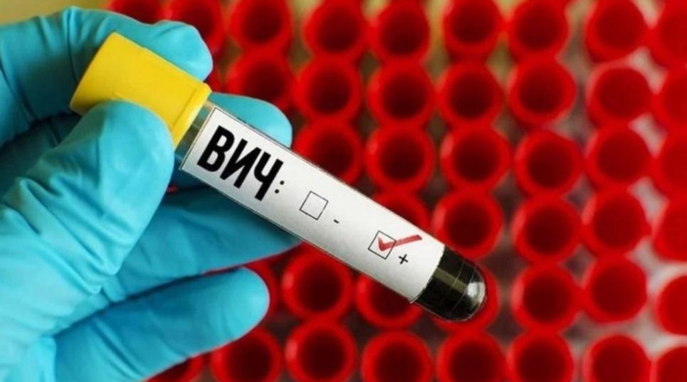 Более 20 тысяч ВИЧ-инфицированных умерли в России в 2018 году