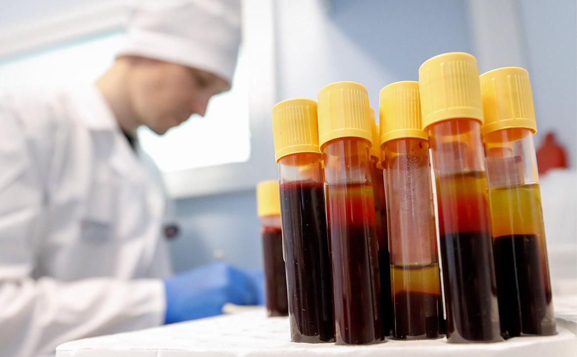 В России количество людей с диагнозом ВИЧ превысило 1 млн.